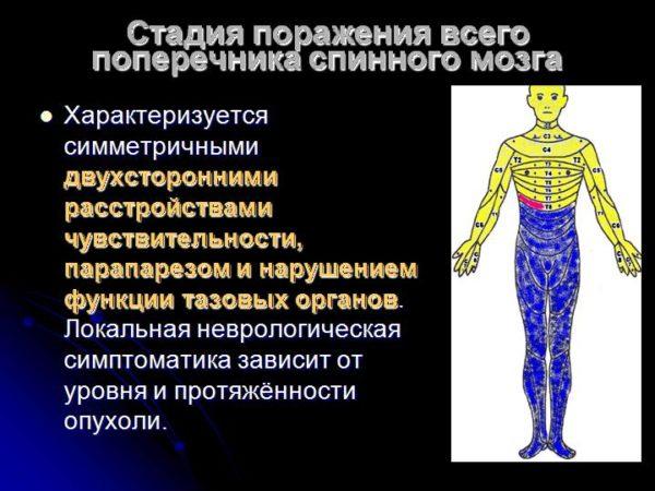 Стадия поражения всего поперечника спинного мозга