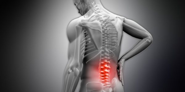 Субхондральный склероз позвоночника