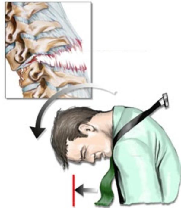 Травма нижнего шейного отдела позвоночника