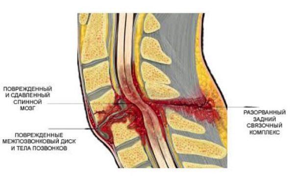 Корешковый синдром часто возникает вследствие травмы позвоночника