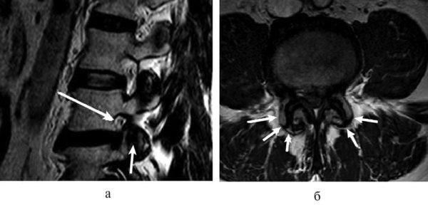 МРТ поясничного отдела позвоночника; формирование стеноза