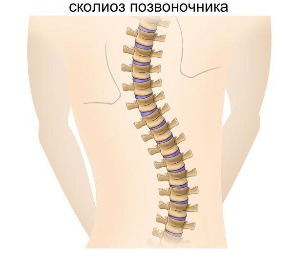 В регулярных обследованиях нуждаются и те, у кого диагностирован сколиоз, кифоз, остеохондроз позвоночника