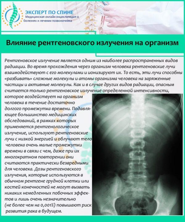 Влияние рентгеновского излучения на организм