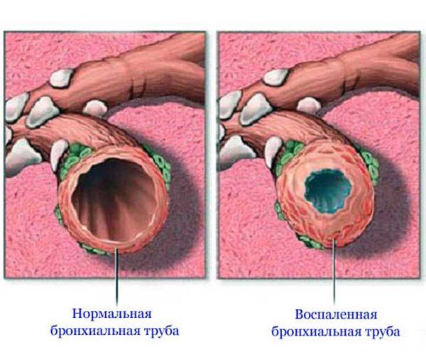 Воспаление бронхиальной трубы