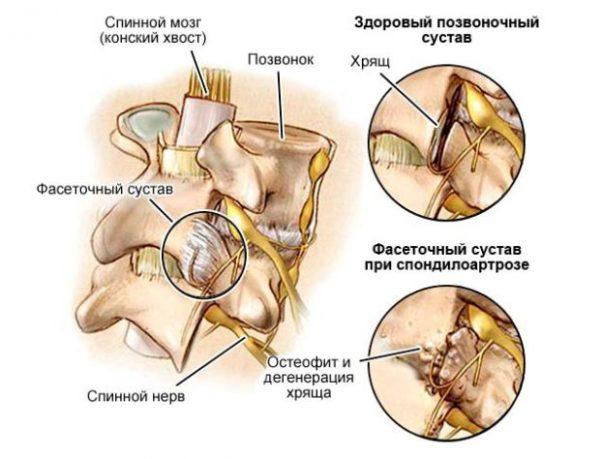 Выраженность симптомов зависит от степени поражения фасеточного сустава