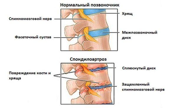Заболевание характеризуется поражением хрящевой и костной ткани с последующим образованием наростов по краю позвонков