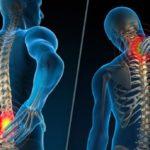 Заболевания и патологические состояния позвоночника