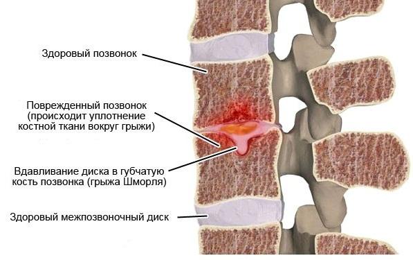 Заболевание никак не проявляется, пока грыжа не увеличится до критических размеров