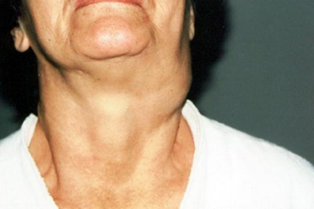 Опухоль на шее сзади ниже затылка