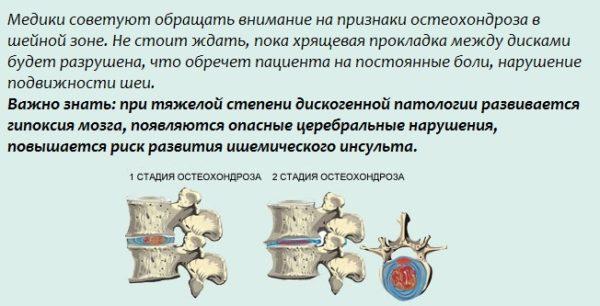 1 и 2 стадии остеохондроза