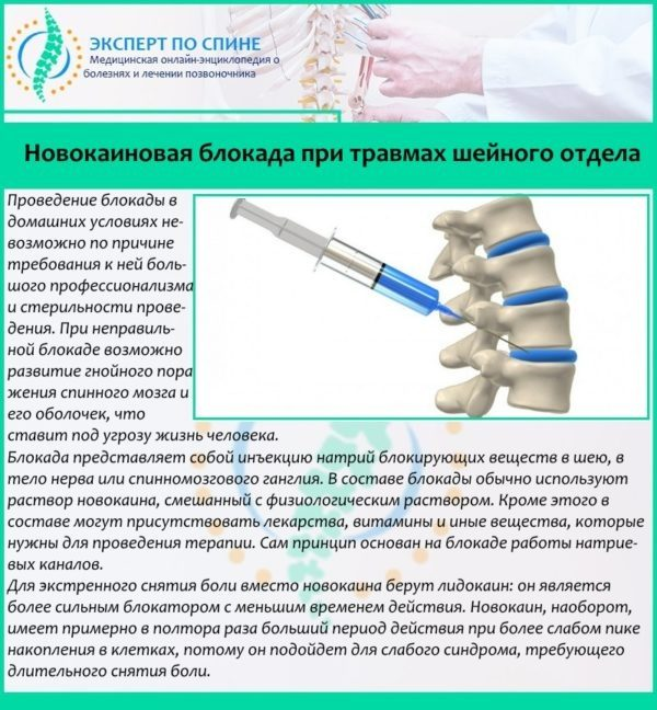 Новокаиновая блокада при травмах шейного отдела