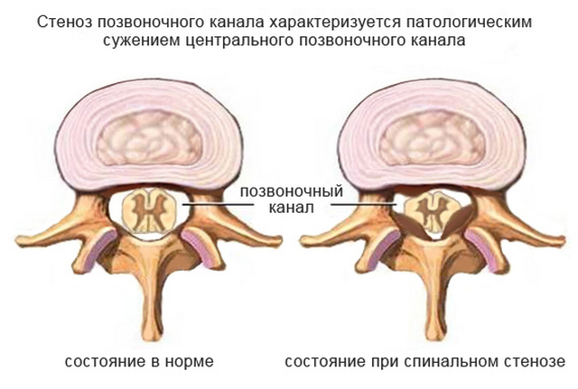 При стенозе позвоночного канала происходит компрессия нервов и кровеносных сосудов