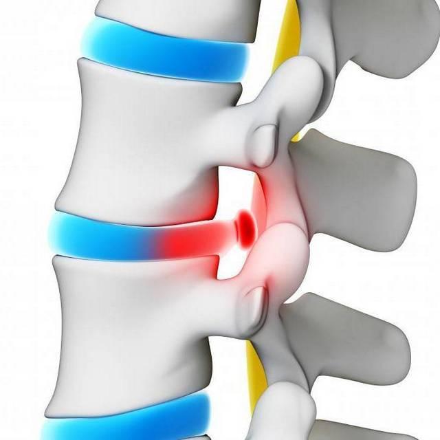 Лечение спинномозговой грыжи
