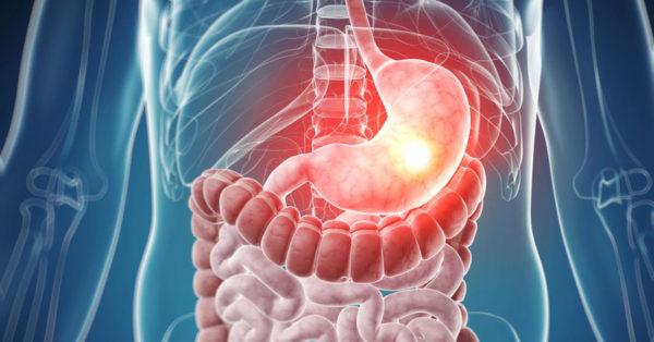 При пероральном приеме лекарственные препараты оказывают раздражающее действие на слизистую желудка и могут вызывать медикаментозный гастрит