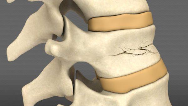 Компрессионные переломы позвонков тоже могут спровоцировать развитие горба
