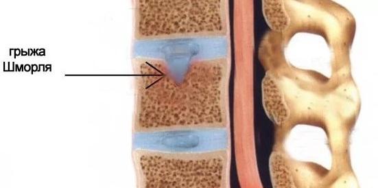 Лечение грыжи Шморля поясничного отдела позвоночника