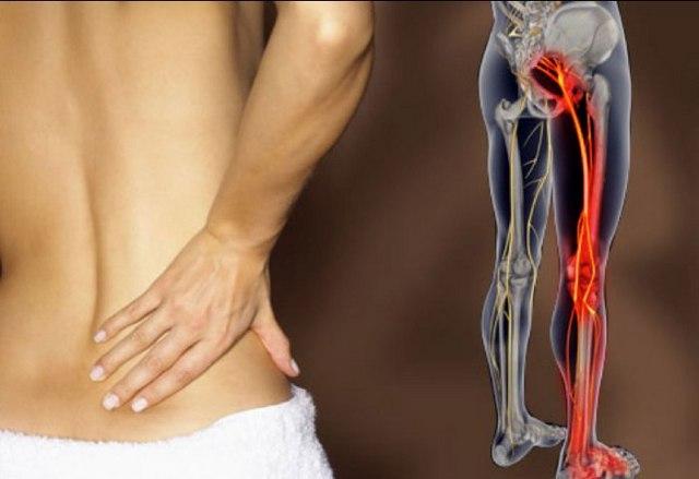 Боль в спине, сопровождающаяся такими же ощущениями в ногах, является явным симптомом экструзии