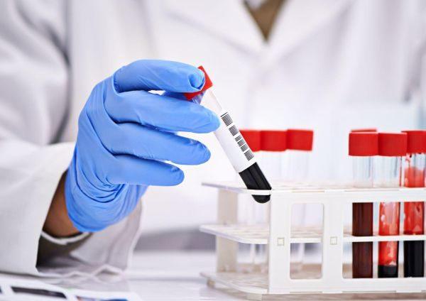 Биохимический анализ крови позволит оценить работу внутренних органов и выявить наличие патогенных микроорганизмов