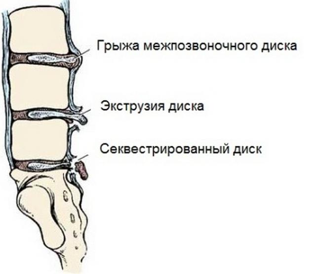 Последним этапом развития грыжи является секвестрация, избавиться от которой значительно сложнее