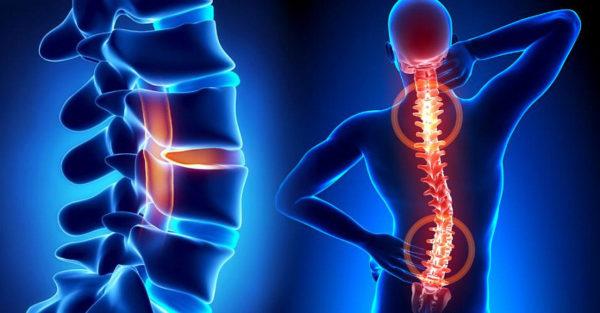 Прогрессирующий сколиоз вызывает стойкий болевой синдром в позвоночнике