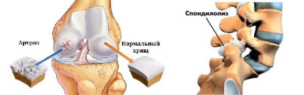 Суставный артроз и спондилолиз с дорсопатией объединяет наличие дегенеративно-дистрофических процессов в тканях