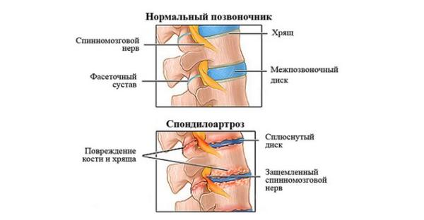 Сакрализация повышает риск развития других заболеваний позвоночника, например, спондилоартроза