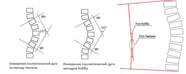 Методики измерения угла искривления позвоночника при сколиозе