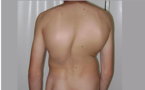 Третья степень сколиоза характеризуется выраженной деформацией туловища