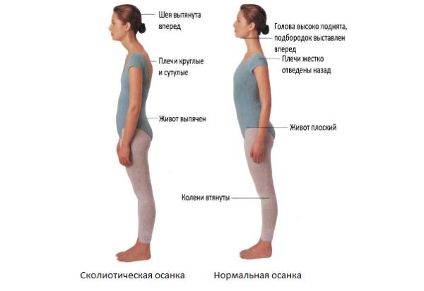 Определить сколиотическую осанку можно по выраженной сутулости плеч, вытянутой вперед шее и выпяченному животу