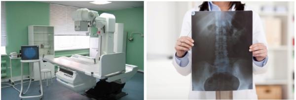 Для диагностики заболеваний позвоночника используют рентгенографию