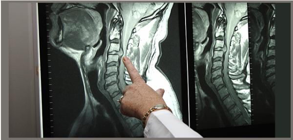 С помощью КТ можно вявить самые мелкие повреждения в позвоночном столбе и прилегающих тканях