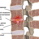 Узлы шморля в грудном отделе позвоночника