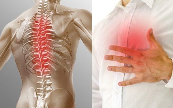 Боль при остеохондрозе часто принимают за проявление стенокардии