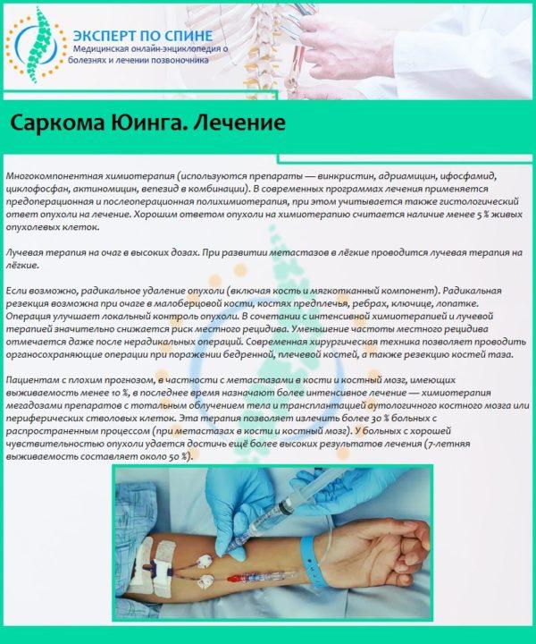 Саркома Юинга. Лечение