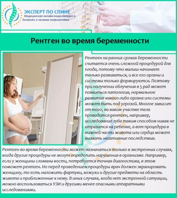 Рентген во время беременности