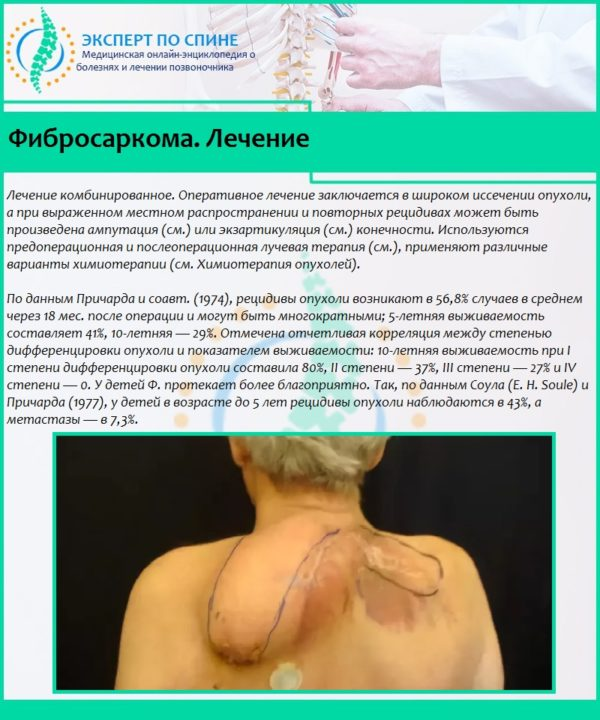 Фибросаркома. Лечение