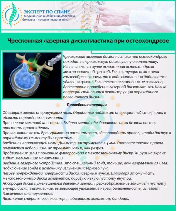 Чрескожная лазерная дископластика при остеохондрозе