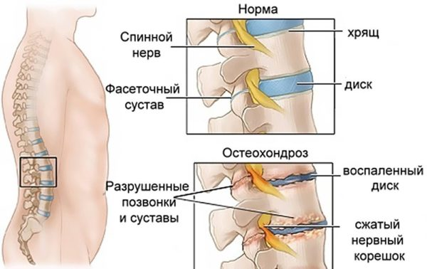 Чаще других при остеохондрозе страдают кости и связки. На данный момент от 40 до 90 процентов людей земного шара испытывают симптомы этого заболевания