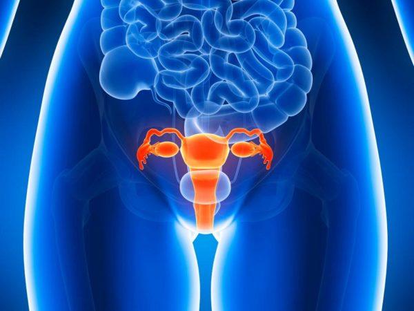 Часто гинекологические заболевания становятся предпосылкой к развитию грыжи копчика