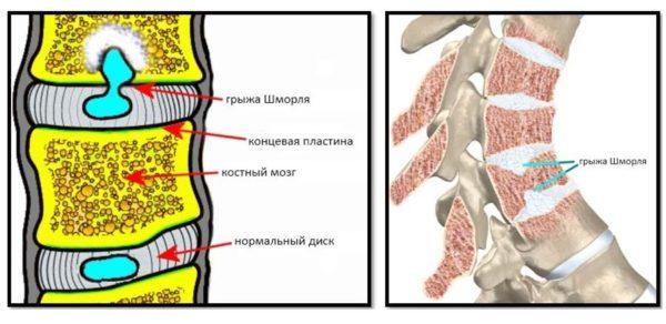 Под давлением замыкательные пластины повреждаются, и хрящ проникает в полости костной ткани позвонков