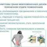 Cимптомы межпозвоночной грыжи поясничного отдела