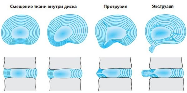 Деформации затрагивают ткани внутри диска, что постепенно приводит к разрыву фиброзного кольца