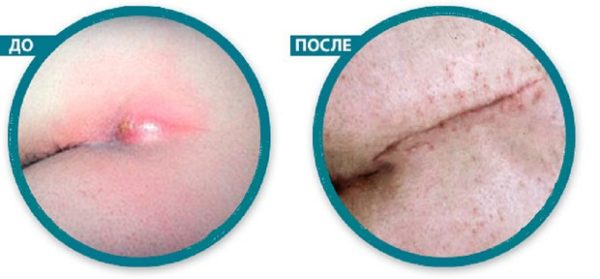 После снятия воспаления и очистки хода от инфильтрата проводят иссечение пораженных тканей и рану полностью зашивают