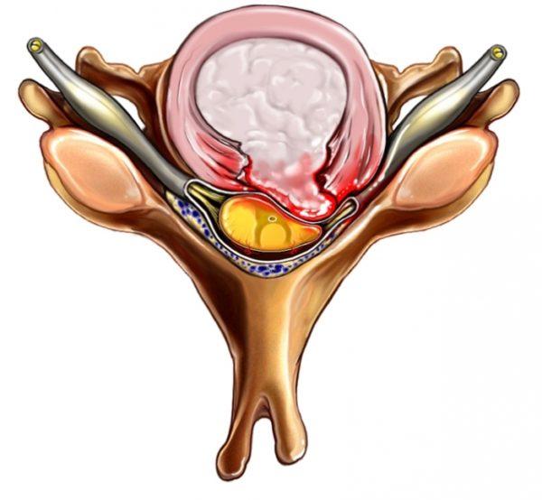 Дорзальная экструзия диска