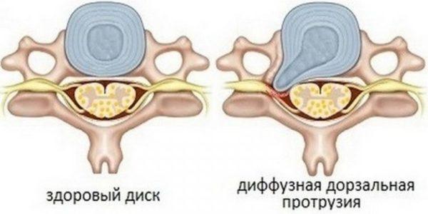 Дорзальные протрузии дисков шейного отдела