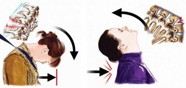 ДТП - самая частая причина переломов шейных позвонков