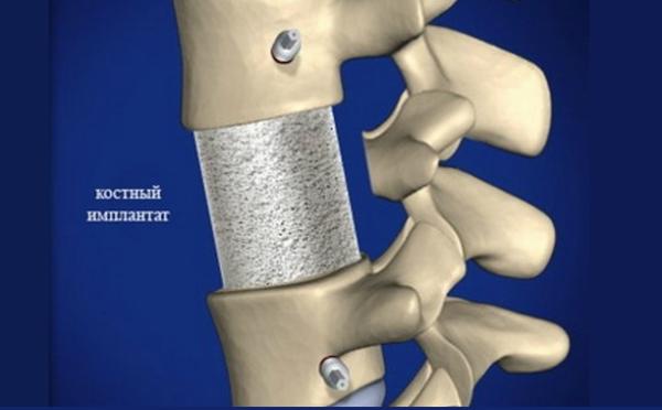 При хирургическом способе лечения производится вживление специального костного импланта