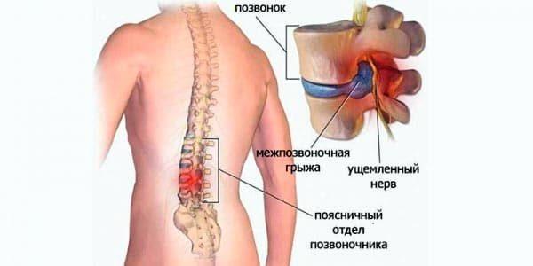 Вследствие изменений, вызванных заболеванием, формируется обычная грыжа диска с защемлением нервных волокон и кровеносных сосудов. На этом этапе болевой синдром значительно усиливается и сопровождается другими характерными симптомами