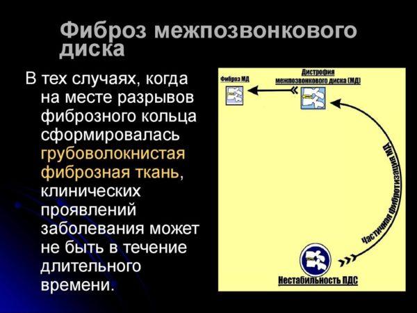 Фиброз межпозвонкового диска
