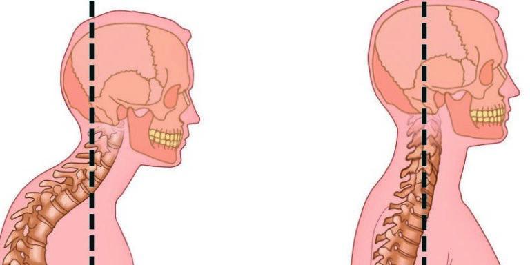 Упражнения при гиперлордозе шейного отдела позвоночника